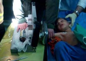 دستِ دختربچه ۳ ساله، طعمه تیغههای چرخگوشت شد