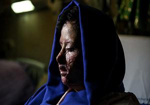 درخواست سهیلا جورکش، قربانی اسید پاشی اصفهان از مردم + فیلم
