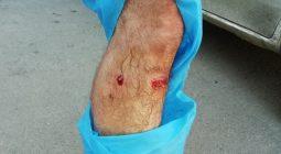 واکسیناتور شبکه دامپزشکی شهرستان برخوار بر اثر حمله سگ مجروح شد